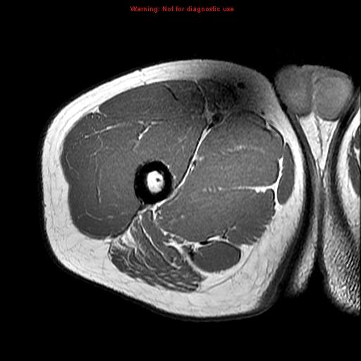 Stanford MSK MRI Atlas 1.0